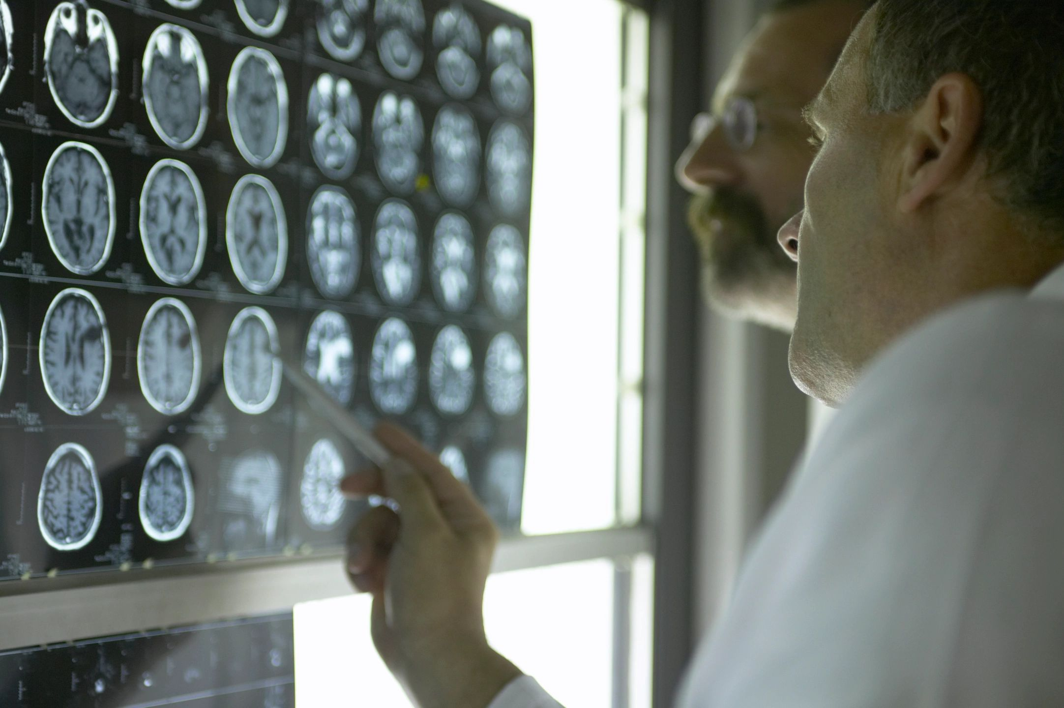 Doctors looking over brain scan images